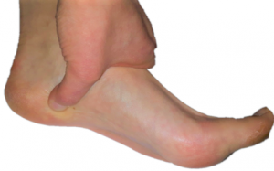Plantar fascia insertion location