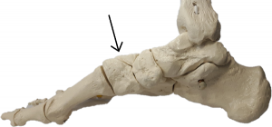 Dorsal midfoot bone spur location