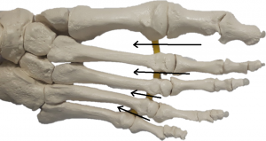 Metatarsal arch collapse and the webspaces where Morton's Neuroma originates
