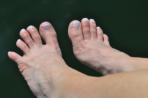 Top of feet with toes spread apart