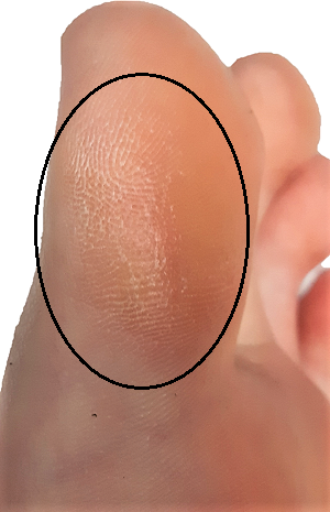 Callus on the inside of the big toe