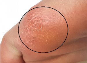 Callus on the bottom of the outside of the forefoot