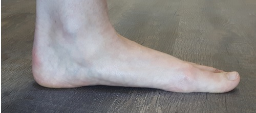 Left foot with a moderately low arch. This can lead to pain when starting a new exercise routine.