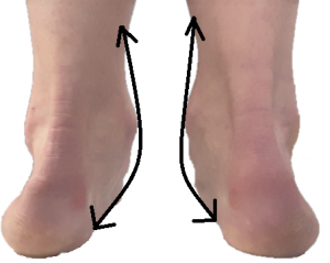 Pronation shown from the heels. Ankles turning in indicates strain to the muscles running on the inside of the ankle.