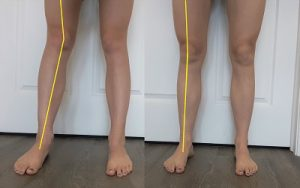 Two images: One with a pronated foot causing knocked knees, and the other with a neutral foot and straight knees.