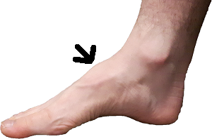 Dorsal midfoot exostosis:  bump on the top of the foot from a high arch.