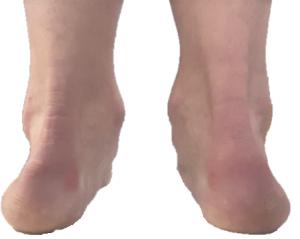 Heels rolling in (pronation)