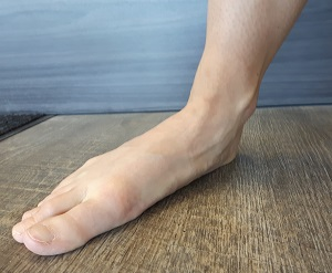 Collapsed foot arch with the toes pointing out