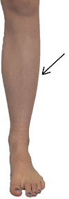 The outside of the lower leg, which is the location of the peroneal muscle.