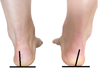 Rearfoot supination