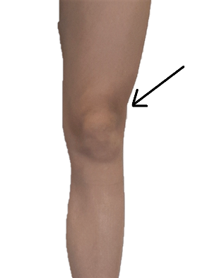 IT Band Syndrome, pain location at the femoral condyle