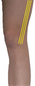 Knee valgus causing IT band tightness