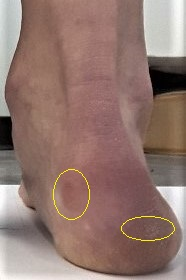 Calluses on the back of the heel