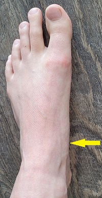 Navicular stress fracture location